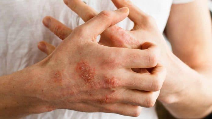 Атопический дерматит: берем болезнь под контроль