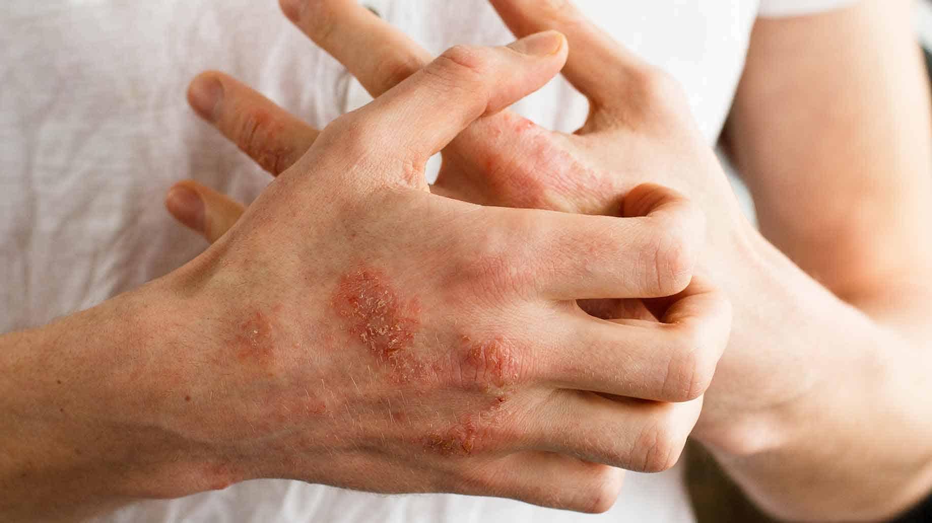 Atopic_dermatitis_1