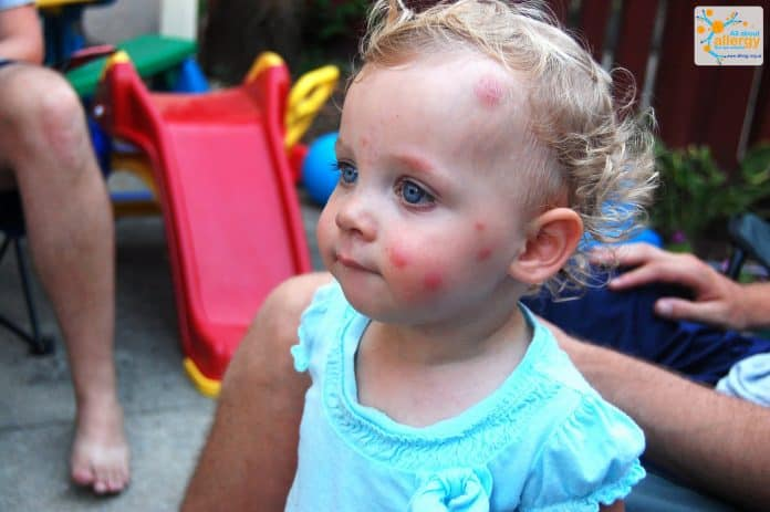 Аллергия на укусы - не главная опасность от комаров