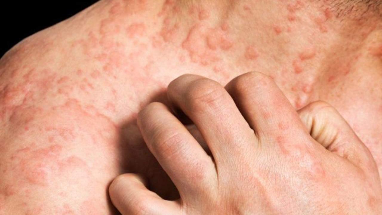 Аллергическая крапивница: более 7 симптомов фото, лечение 35 препаратов у детей и взрослых, причины, диагностика