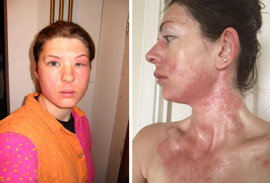 allergic-reaction-on-face