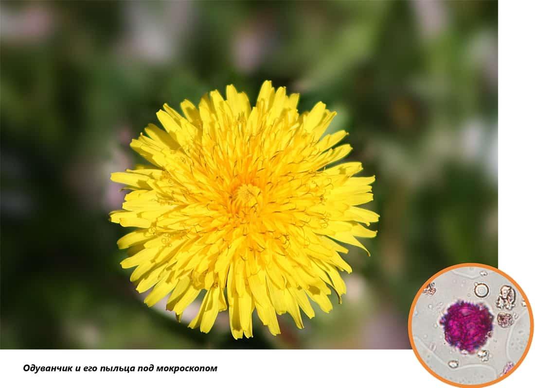 В Днепре цветут одуванчики: не нюхайте их, в них страшный аллерген. Новости Днепра