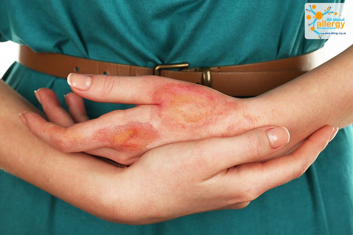 lechenie-dermatita_