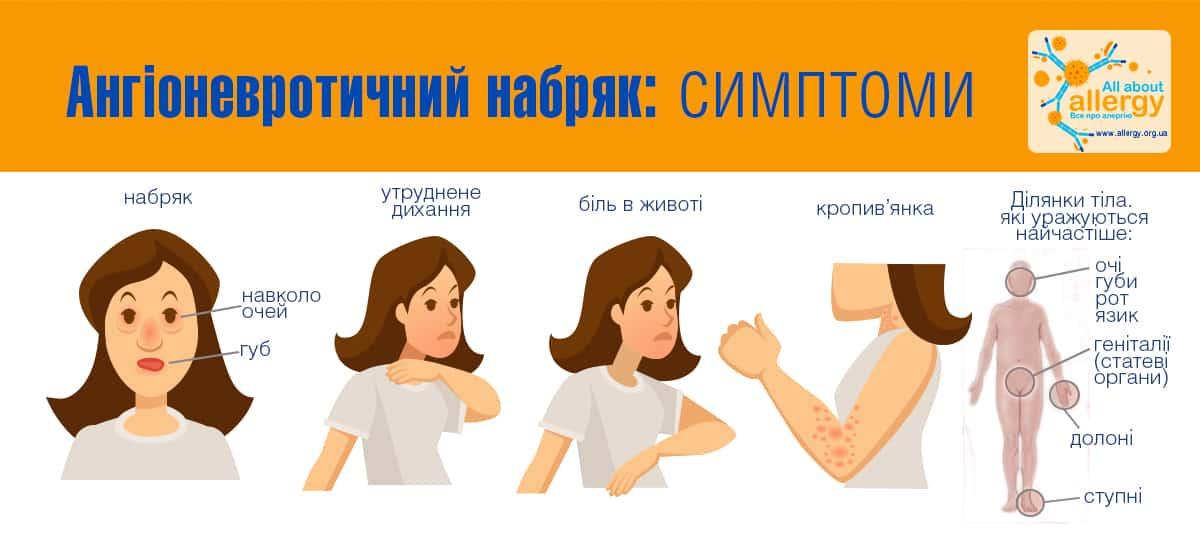 сімптоми_укр