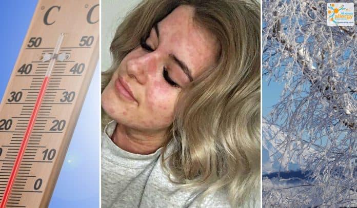 холодова алергія