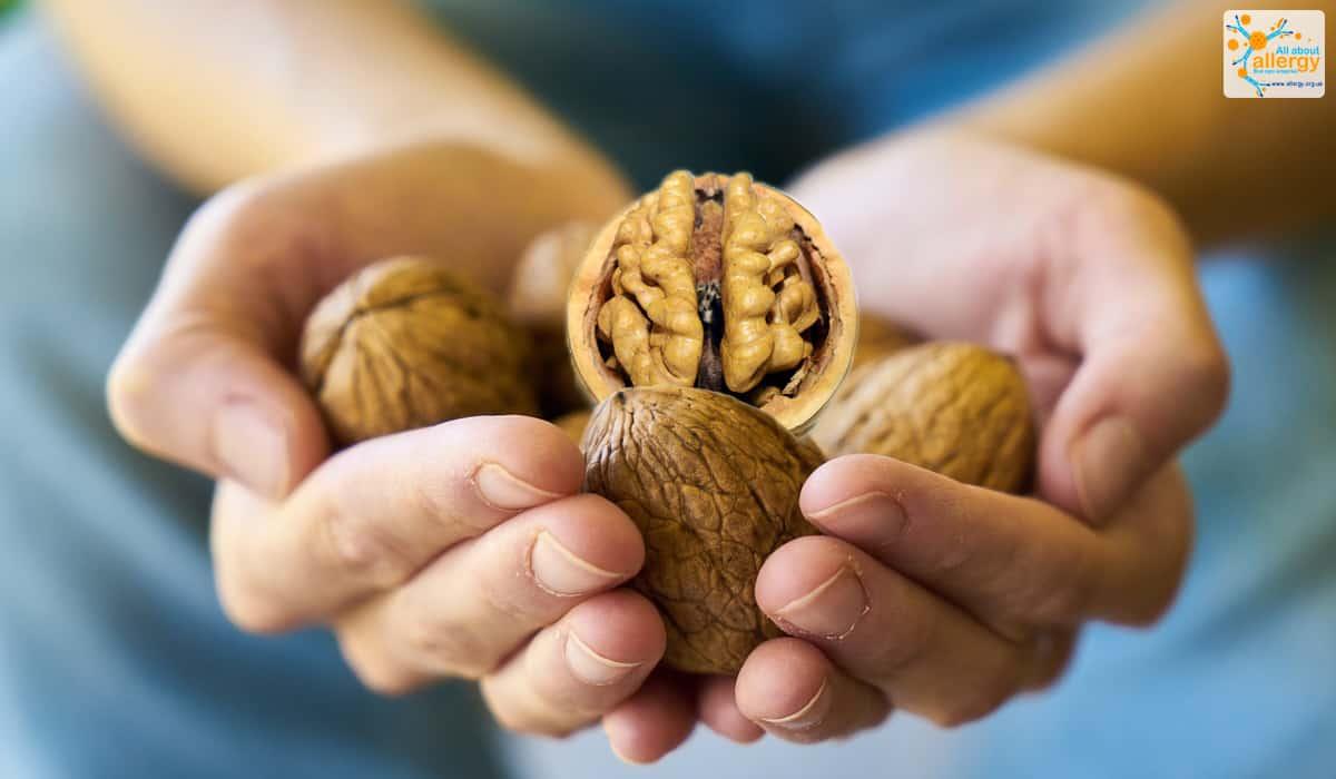 Аллергия на орехи симптомы