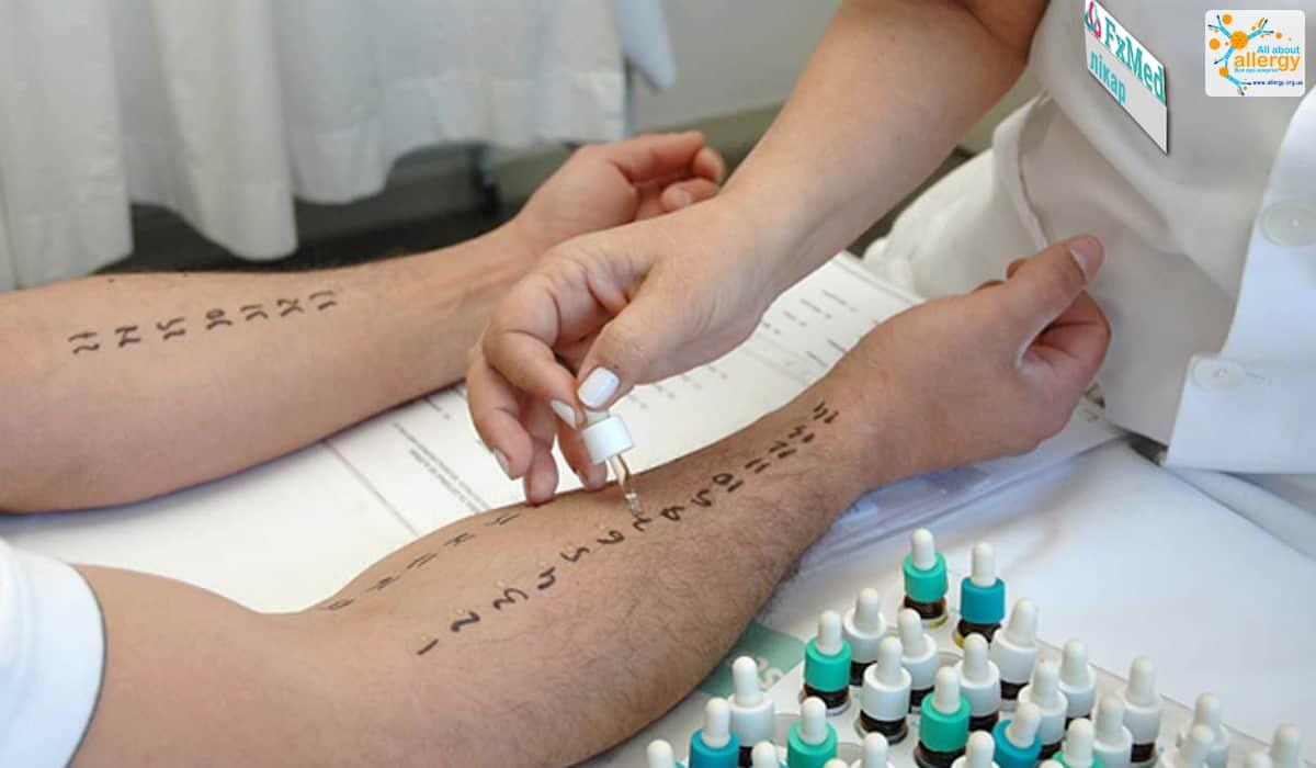 Пищевая аллергия: прик-тесты