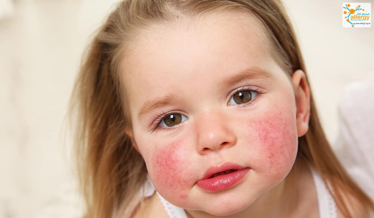 Атопический дерматит – распространенный тип экземы