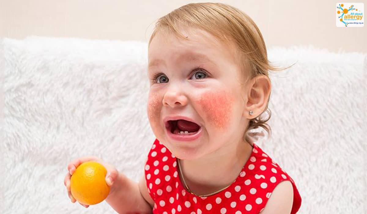Що може викликати алергічні реакції? Цитрусові