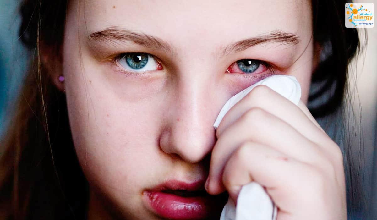 Аллергия на плесень симптомы фото