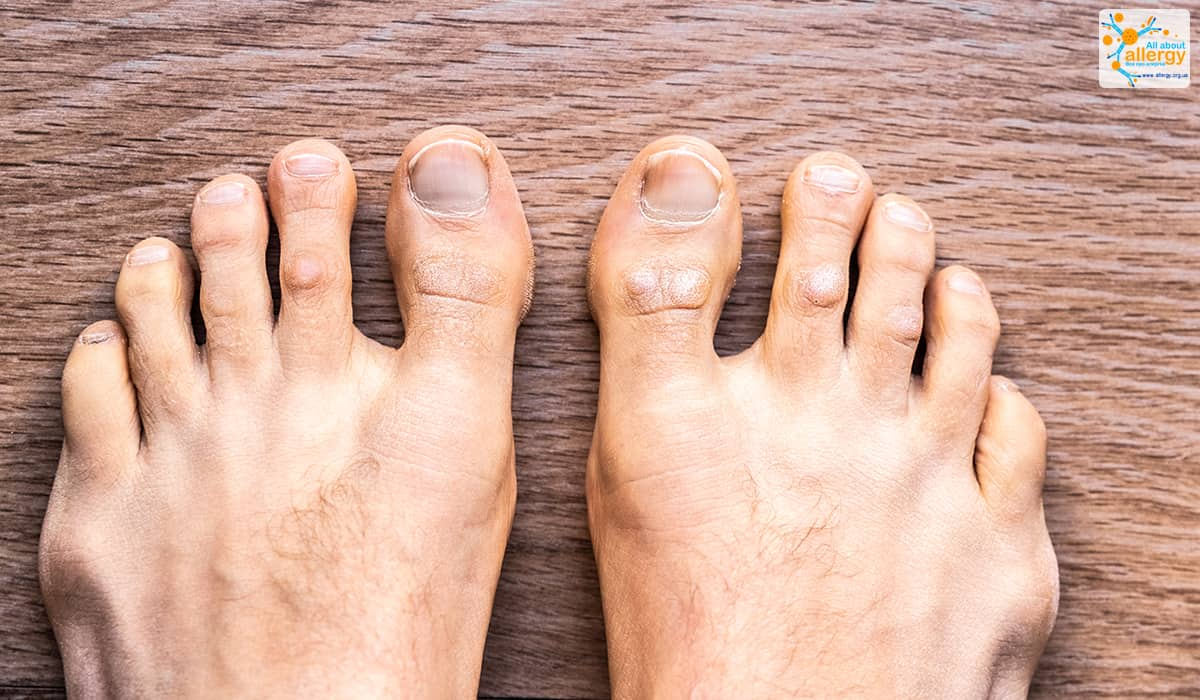 Feet with psoriasis dermatitis