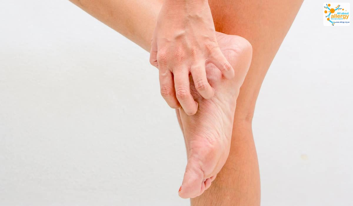 Алергічний висип на ногах фото